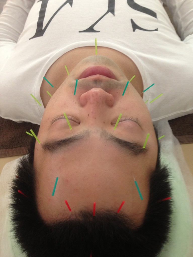 治療中の画像二つ目